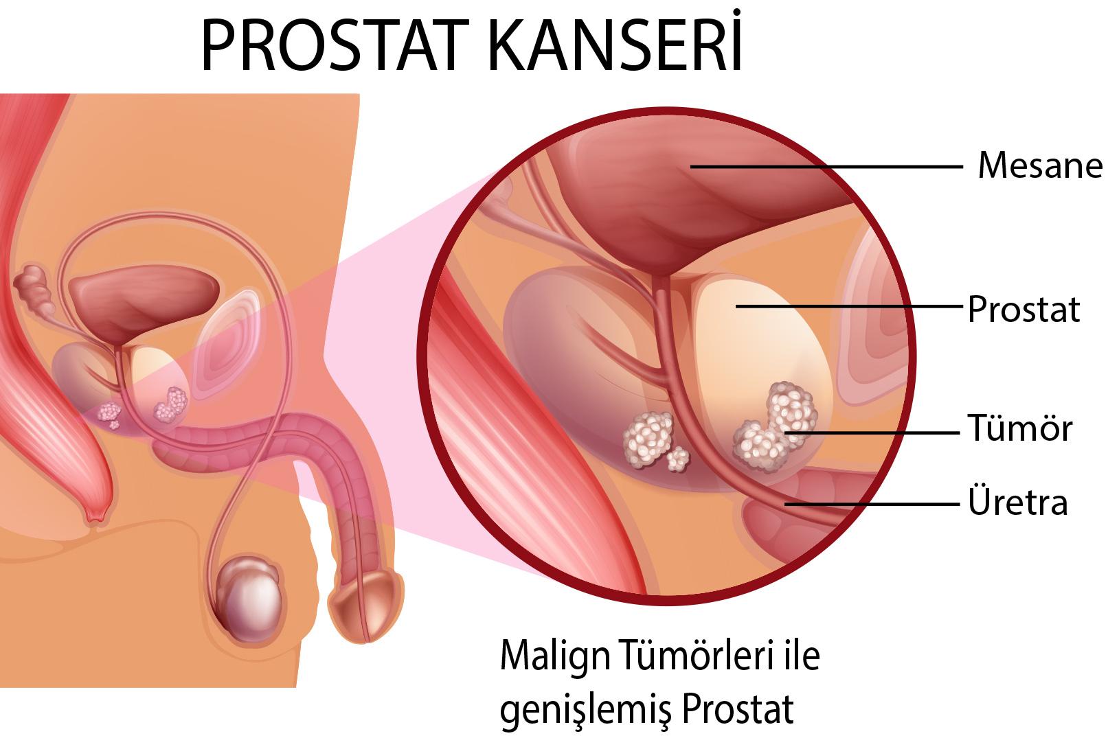 Простатит у мужчин может перейти в рак уросептики при простатите